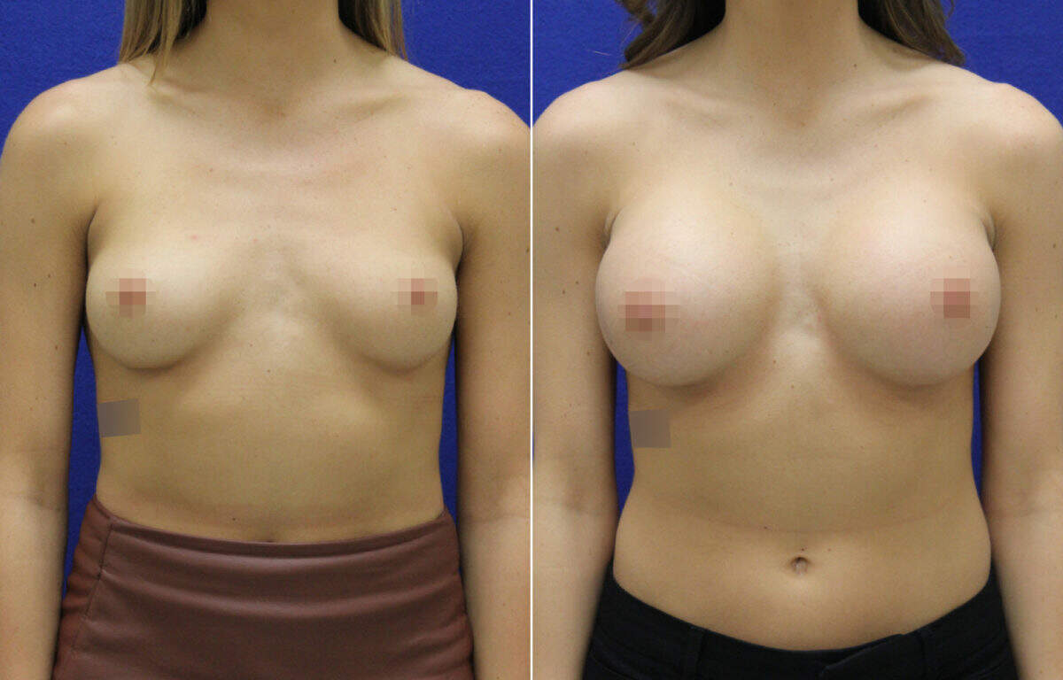 Breast Augmentation Before and After Photos in Lexington, KY, Patient 7956