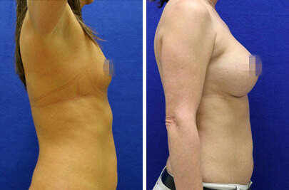 Breast Augmentation Before and After Photos in Lexington, KY, Patient 8273