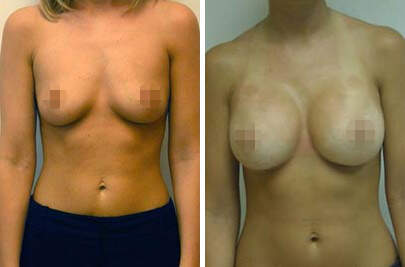 Breast Augmentation Before and After Photos in Lexington, KY, Patient 8323