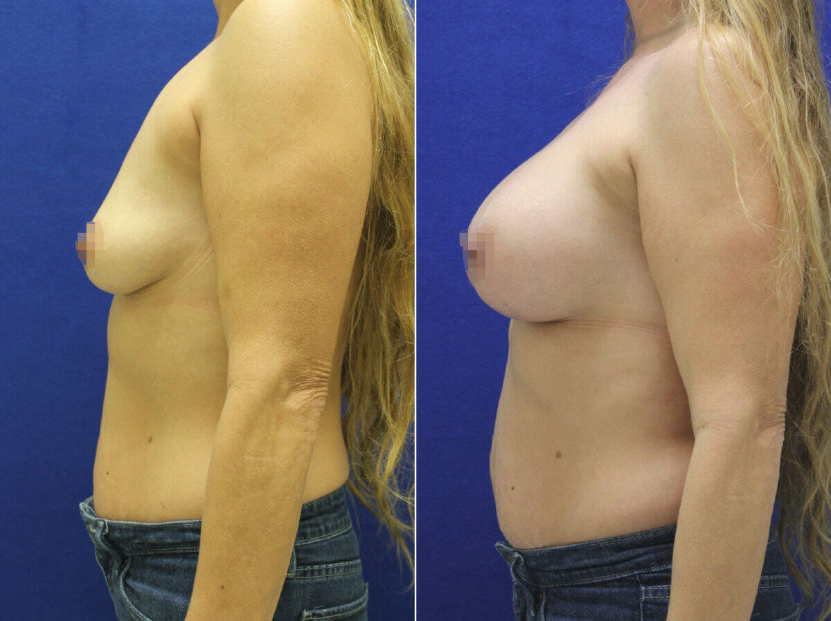 Breast Augmentation Before and After Photos in Lexington, KY, Patient 8636