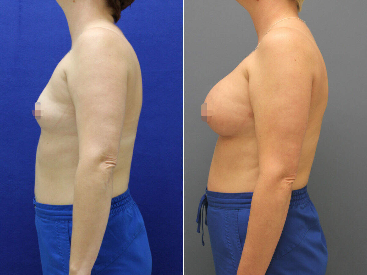 Breast Augmentation Before and After Photos in Lexington, KY, Patient 8676