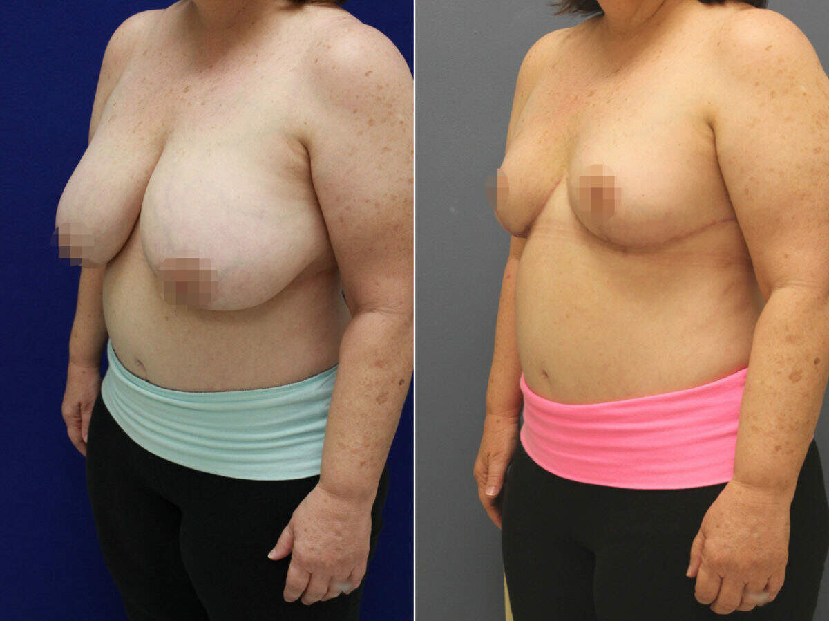 Breast Reduction Before and After Photos in Lexington, KY, Patient 8778