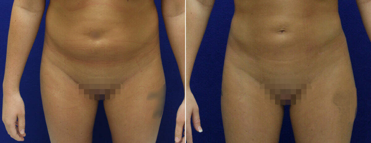 Brazilian Butt Lift Before and After Photos in Lexington, KY, Patient 8814