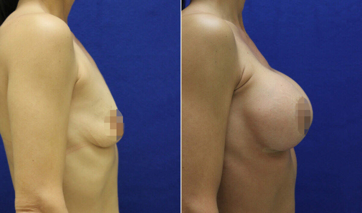 Breast Augmentation Before and After Photos in Lexington, KY, Patient 8984