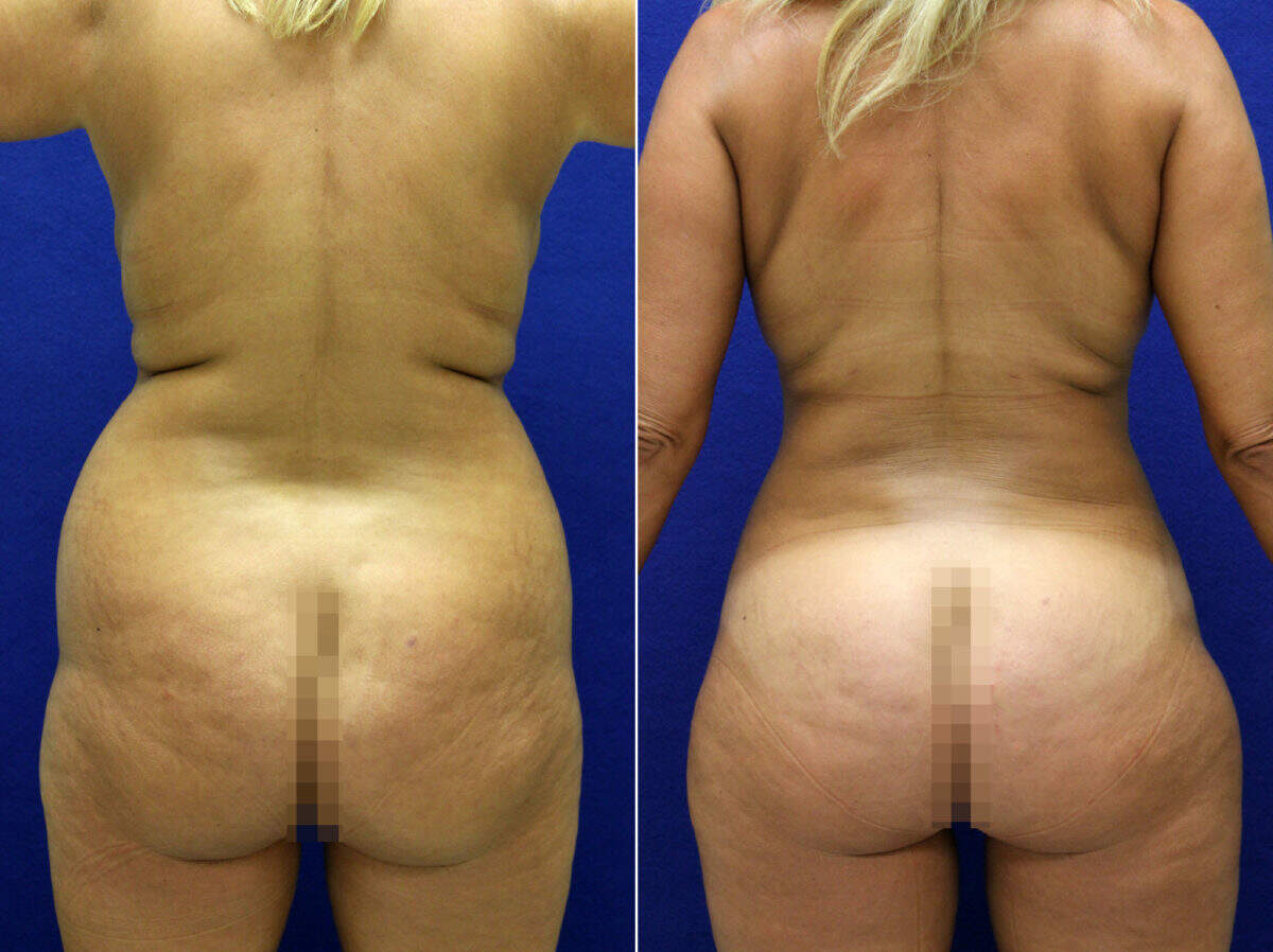 Liposuction Before and After Photos in Lexington, KY, Patient 9021