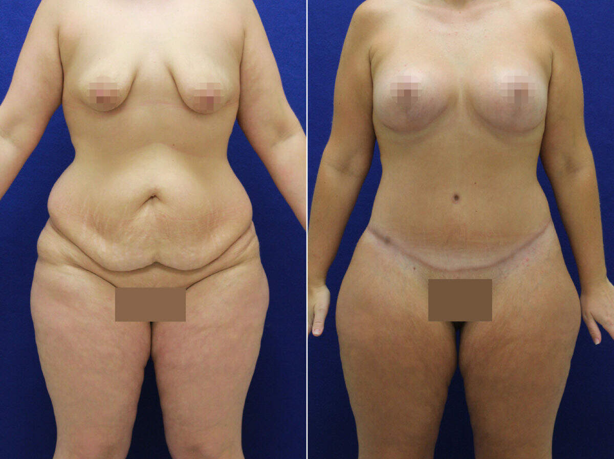Tummy Tuck Before and After Photos in Lexington, KY, Patient 9032