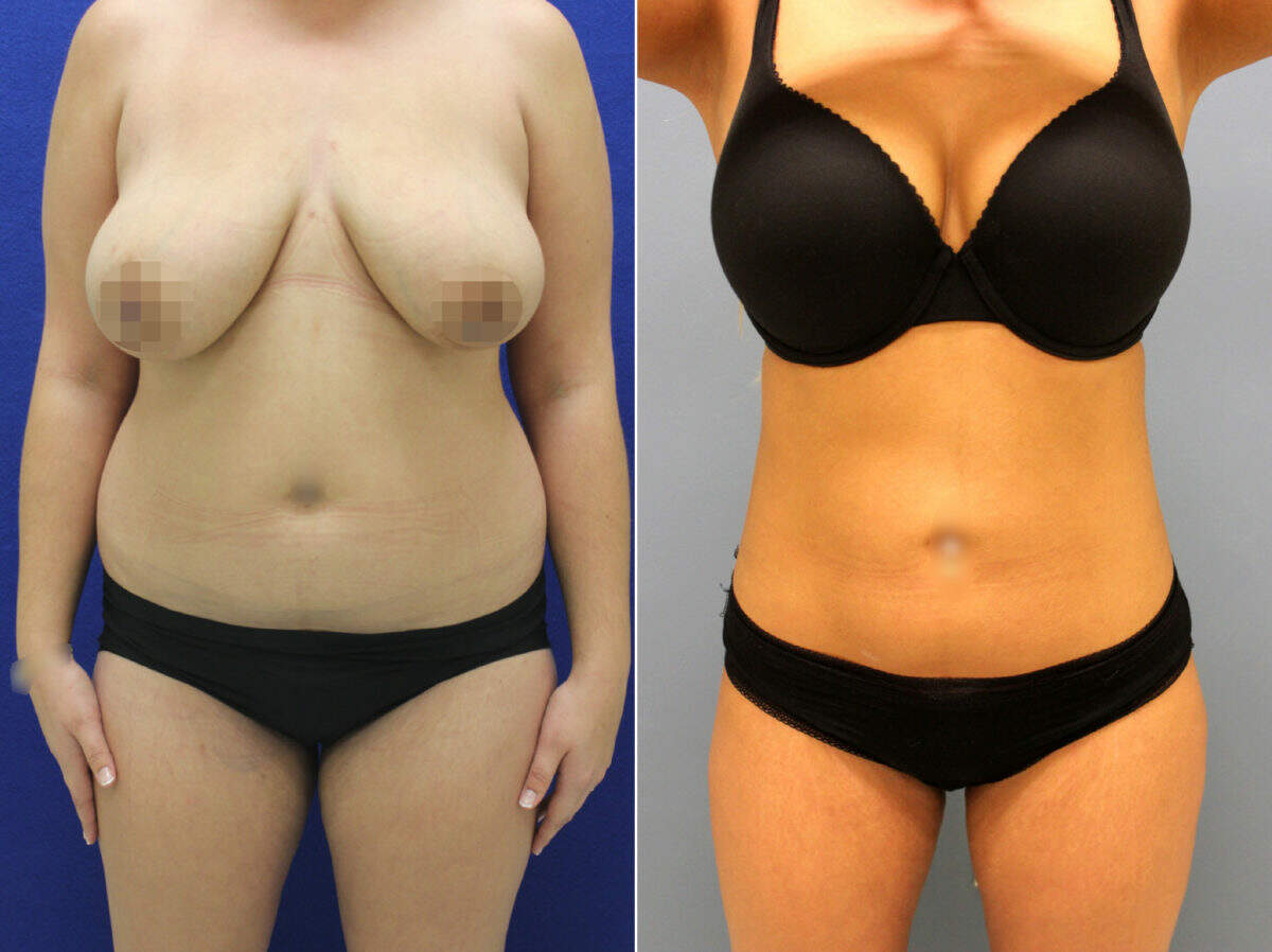 Liposuction Before and After Photos in Lexington, KY, Patient 9043