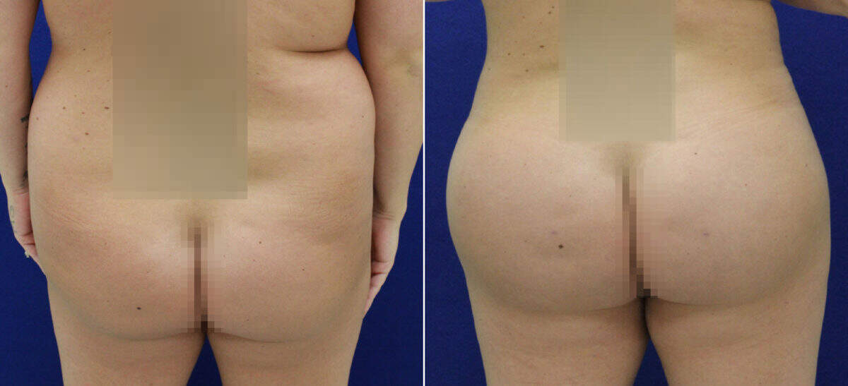 Brazilian Butt Lift Before and After Photos in Lexington, KY, Patient 9133