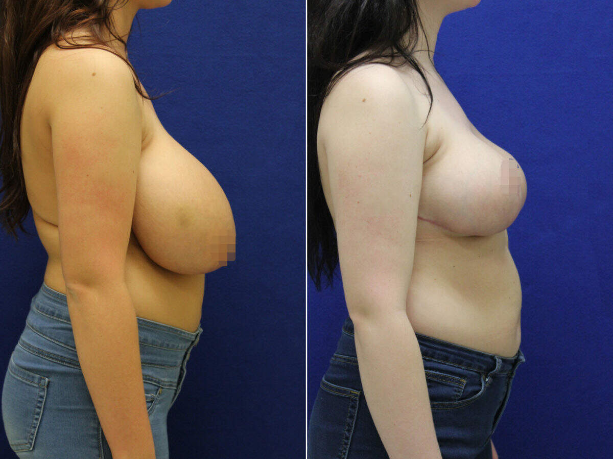 Breast Reduction Before and After Photos in Lexington, KY, Patient 9155
