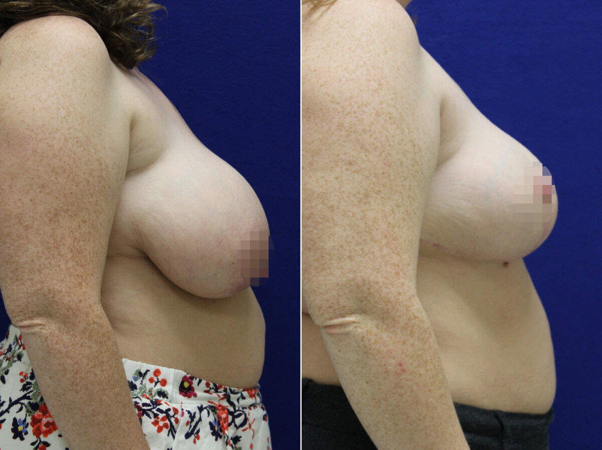 Breast Reduction Before and After Photos in Lexington, KY, Patient 9166