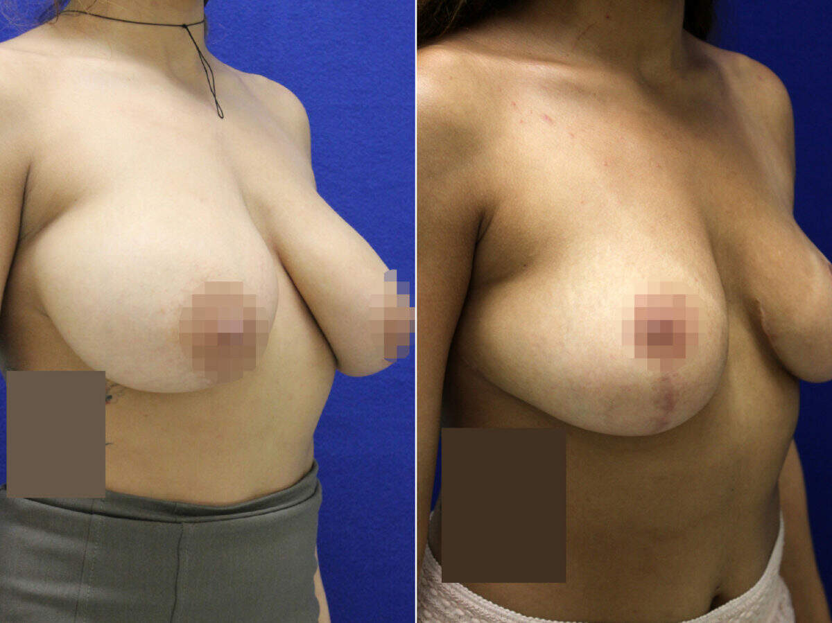 Breast Reduction Before and After Photos in Lexington, KY, Patient 9176