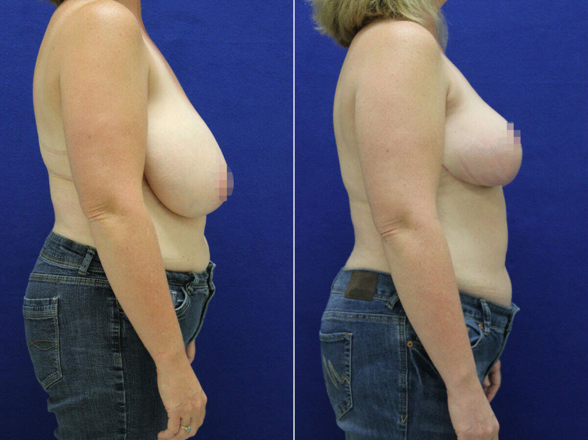 Breast Reduction Before and After Photos in Lexington, KY, Patient 9206