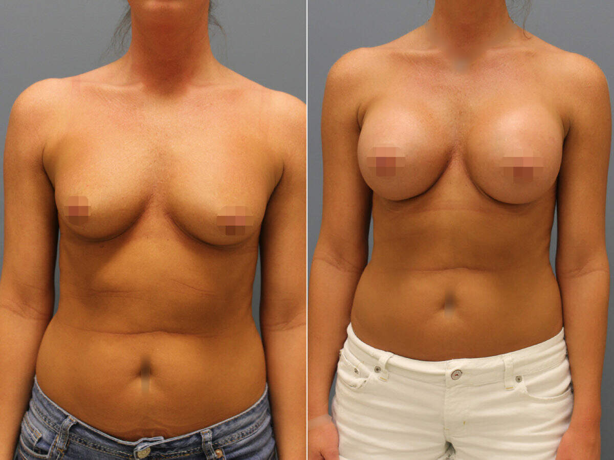 Breast Augmentation Before and After Photos in Lexington, KY, Patient 9349