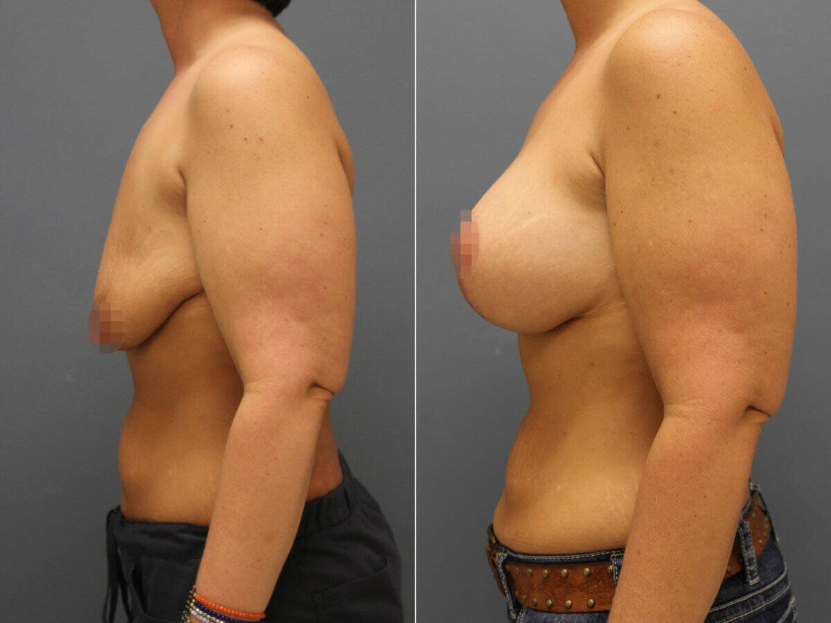 Breast Lift with Implants Before and After Photos in Lexington, KY, Patient 9353