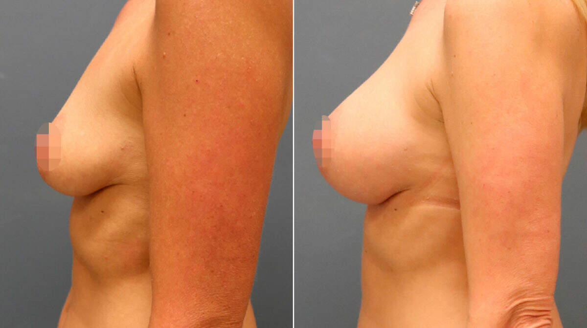 Breast Augmentation Before and After Photos in Lexington, KY, Patient 9896