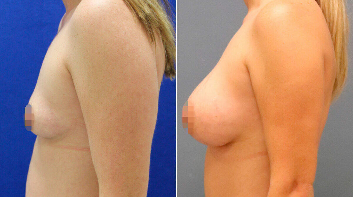 Breast Augmentation Before and After Photos in Lexington, KY, Patient 9900