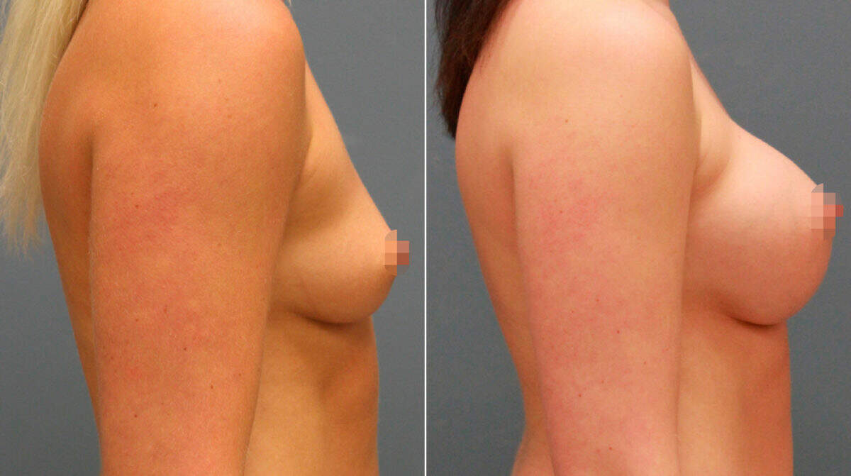 Breast Augmentation Before and After Photos in Lexington, KY, Patient 9946