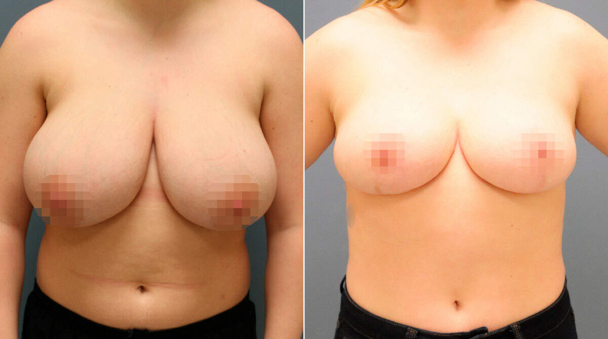 Breast Reduction Before and After Photos in Lexington, KY, Patient 9976