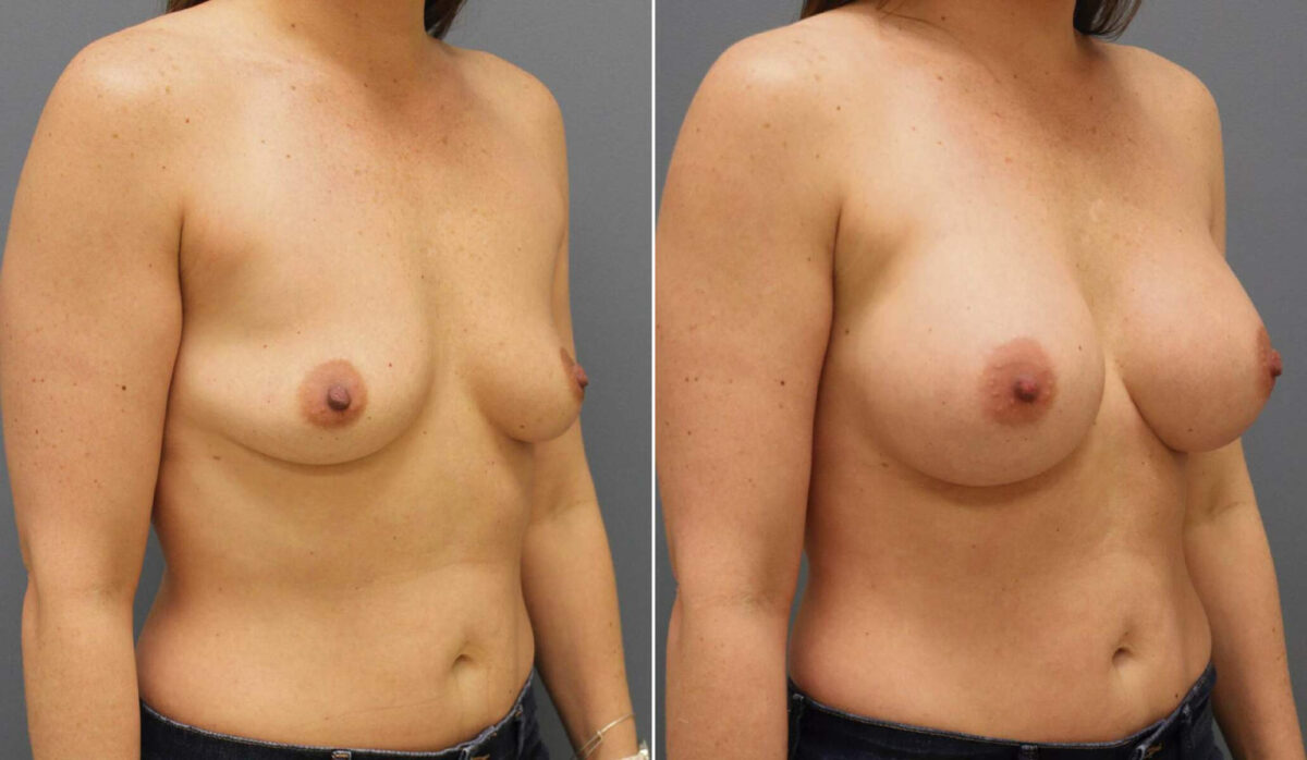 Breast Augmentation Before and After Photos in Lexington, KY, Patient 10116