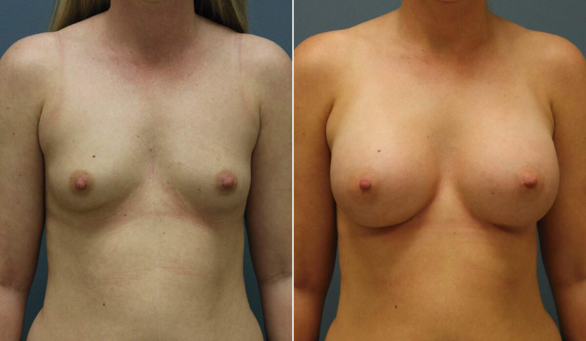Breast Augmentation Before and After Photos in Lexington, KY, Patient 10127