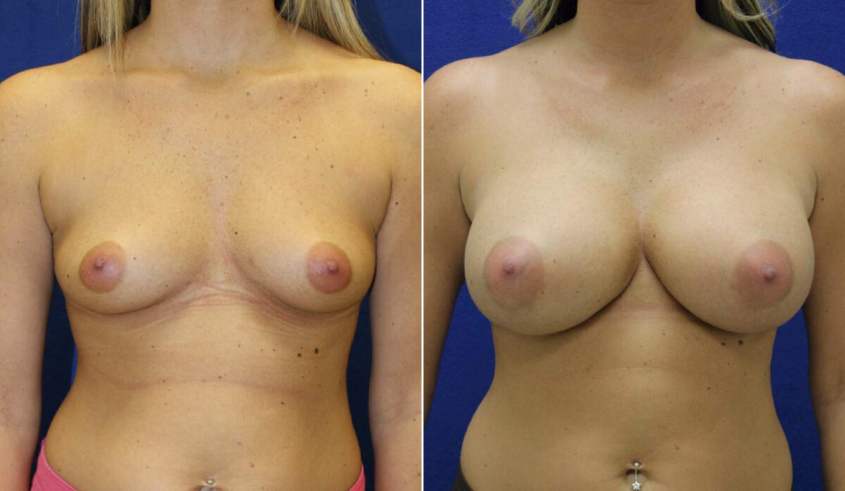 Breast Augmentation Before and After Photos in Lexington, KY, Patient 10134