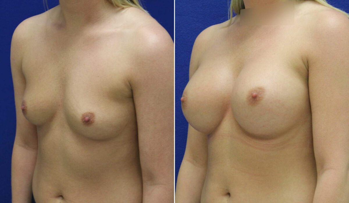 Breast Augmentation Before and After Photos in Lexington, KY, Patient 10137