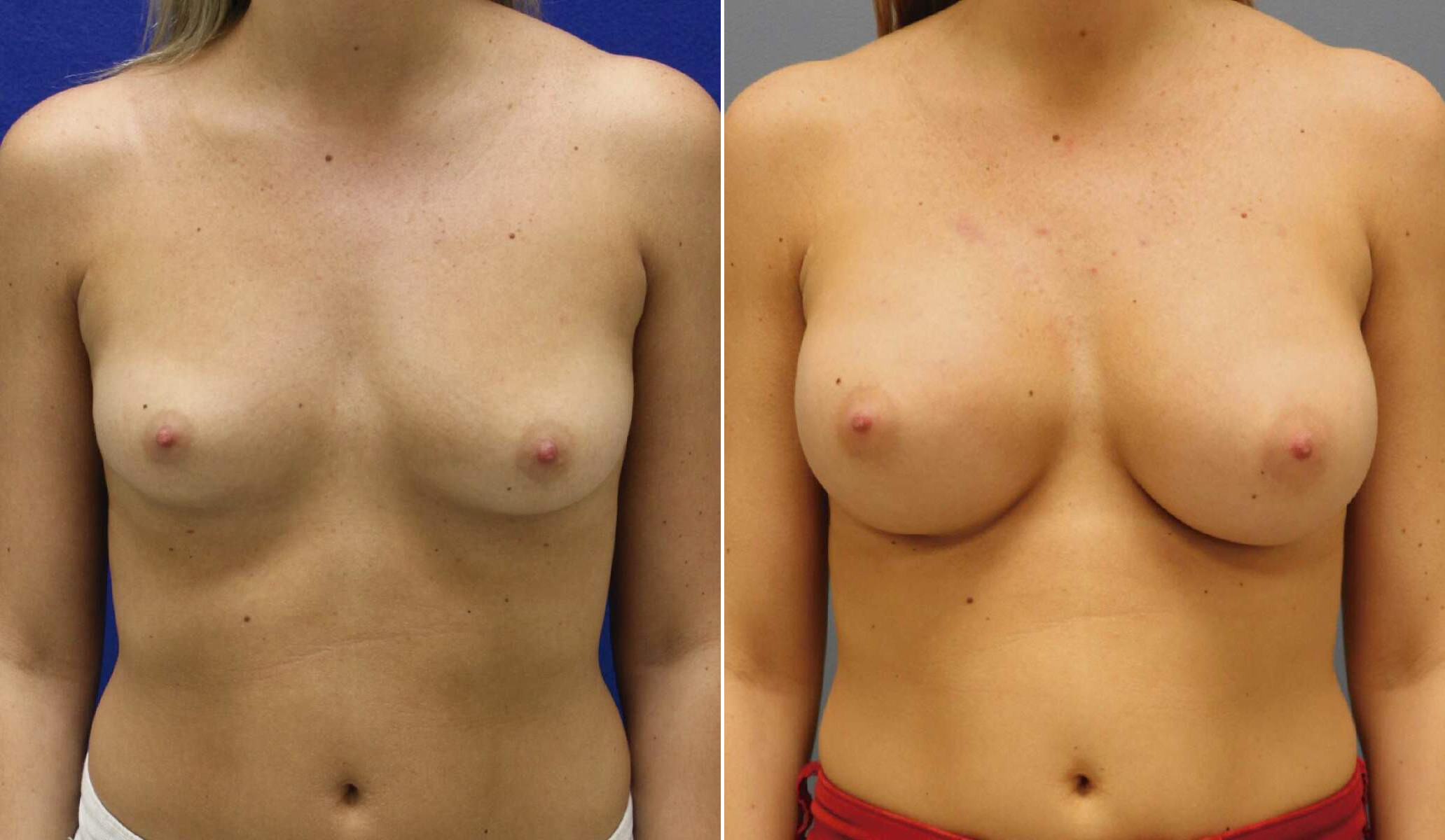 Before and After Photos in , , Breast Augmentation in Lexington, KY