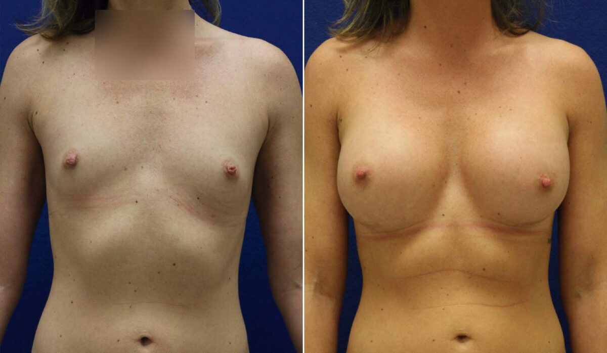 Breast Augmentation Before and After Photos in Lexington, KY, Patient 10197