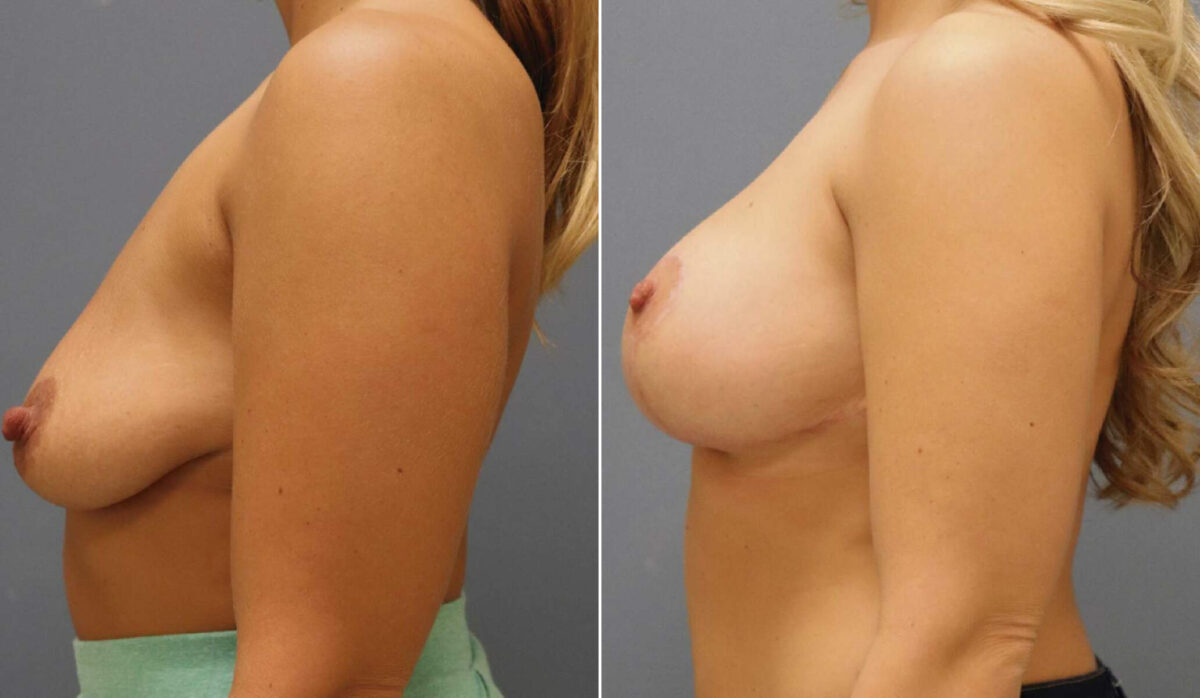 Breast Lift with Implants Before and After Photos in Lexington, KY, Patient 10243
