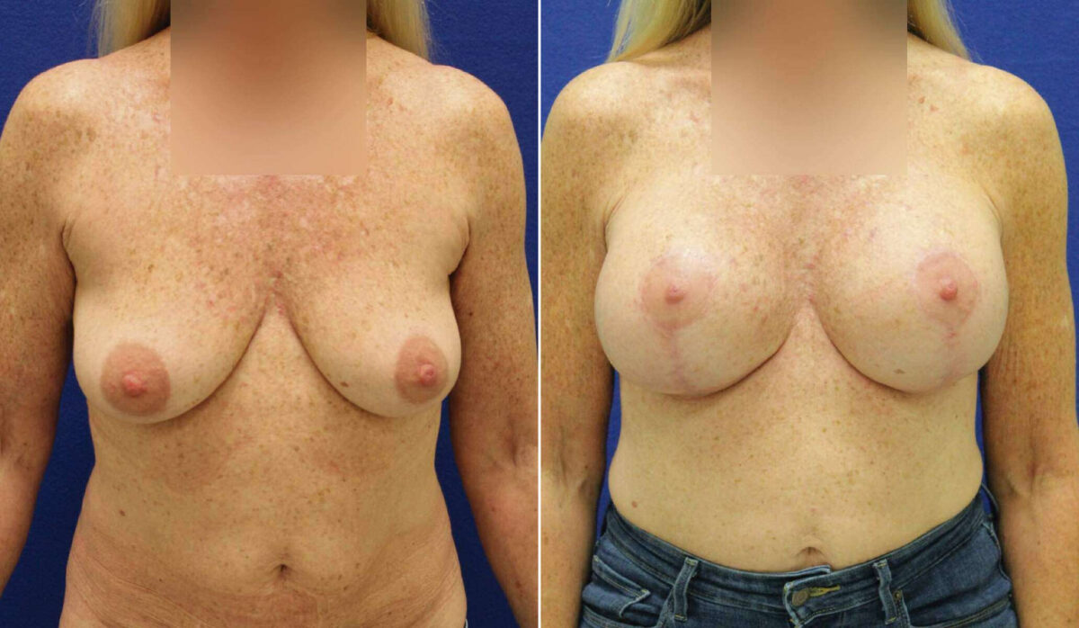 Breast Lift with Implants Before and After Photos in Lexington, KY, Patient 10251