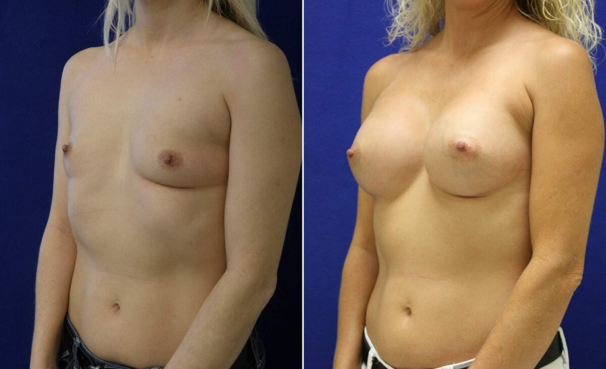 Breast Augmentation Before and After Photos in Lexington, KY, Patient 10391