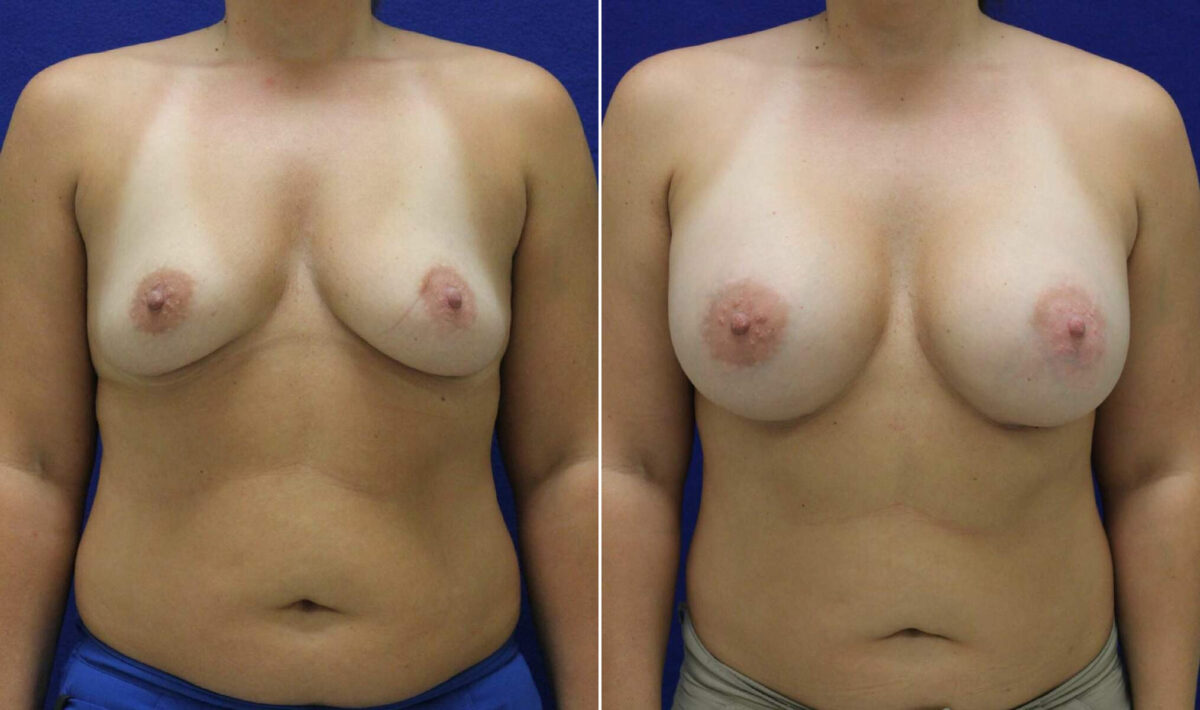 Breast Augmentation Before and After Photos in Lexington, KY, Patient 10401