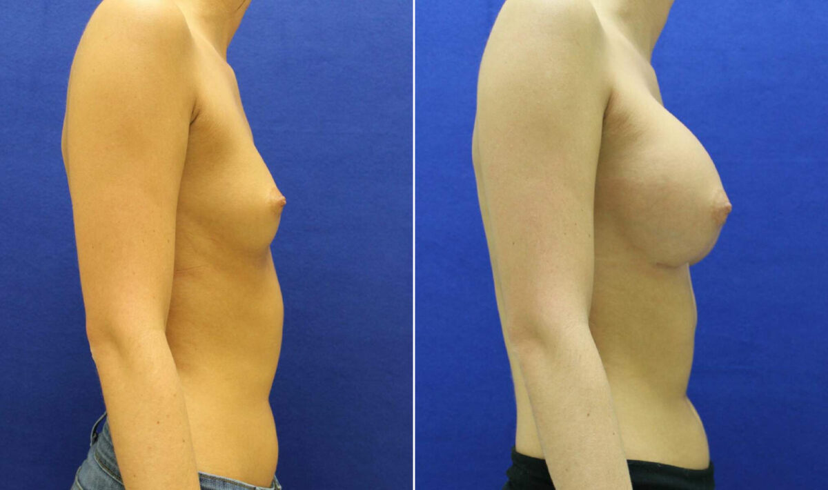 Breast Augmentation Before and After Photos in Lexington, KY, Patient 10411