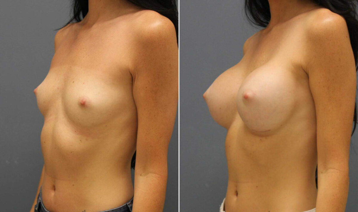 Breast Augmentation Before and After Photos in Lexington, KY, Patient 10431