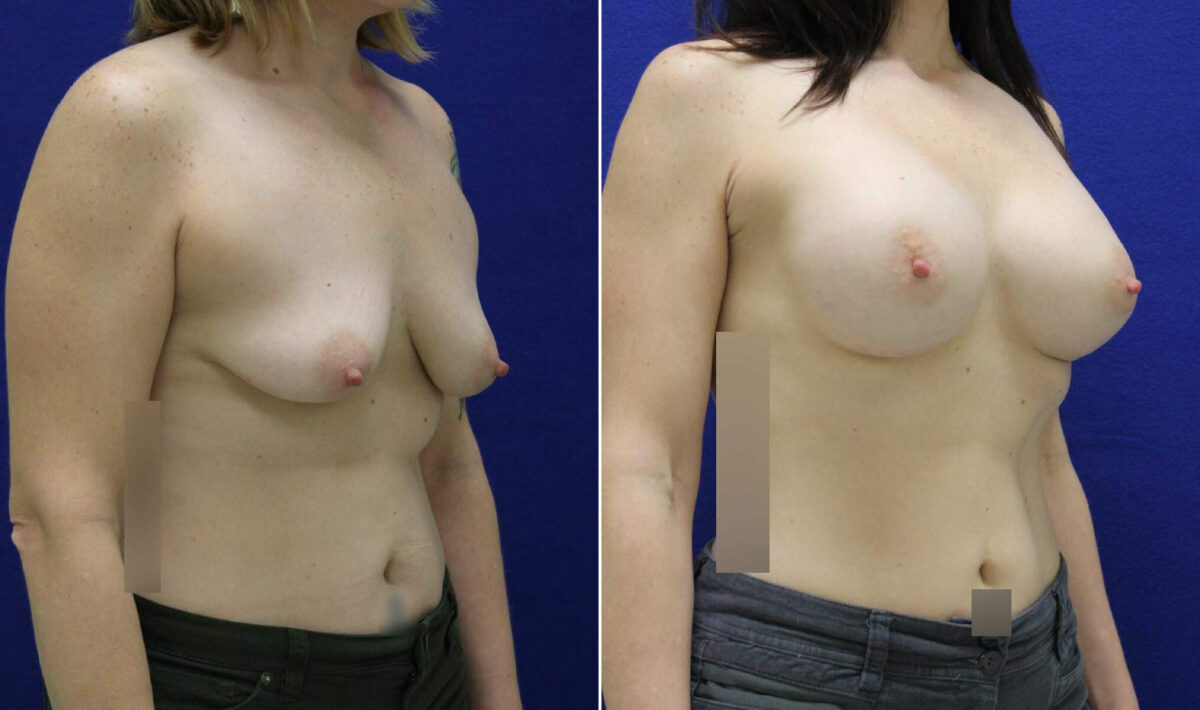 Breast Augmentation Before and After Photos in Lexington, KY, Patient 10445