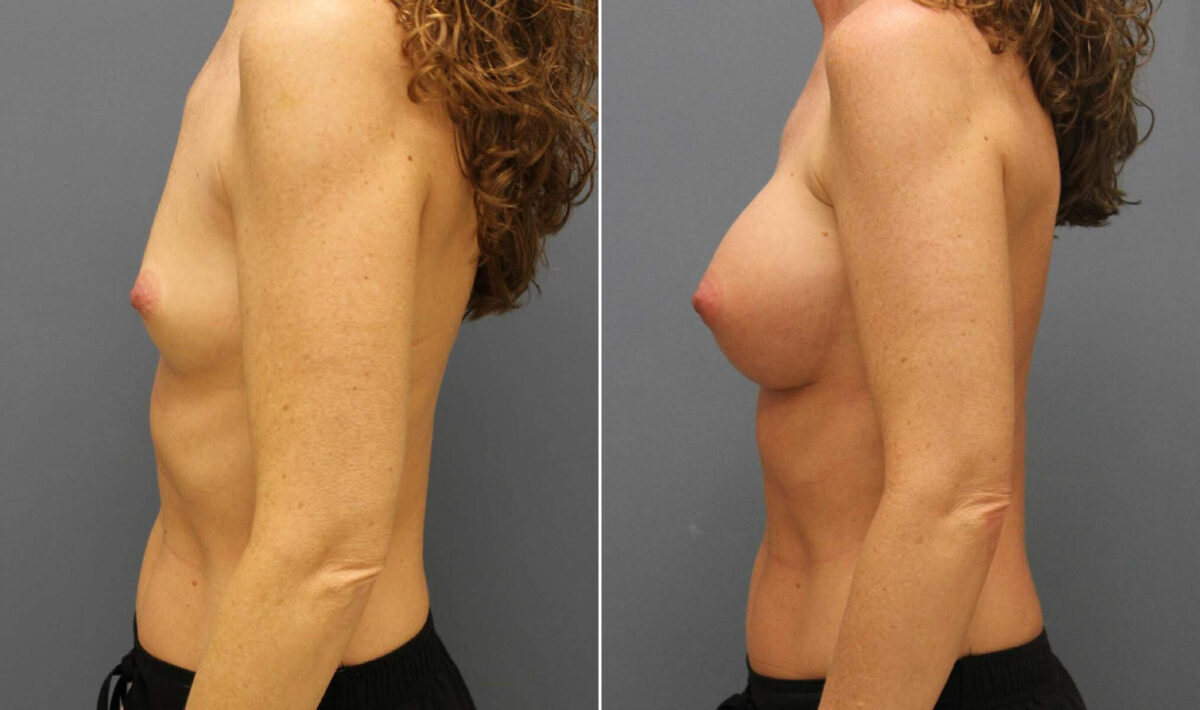 Breast Augmentation Before and After Photos in Lexington, KY, Patient 10458