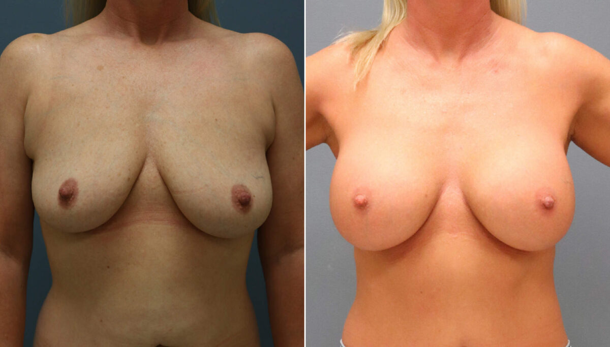 Breast Augmentation Before and After Photos in Lexington, KY, Patient 11018