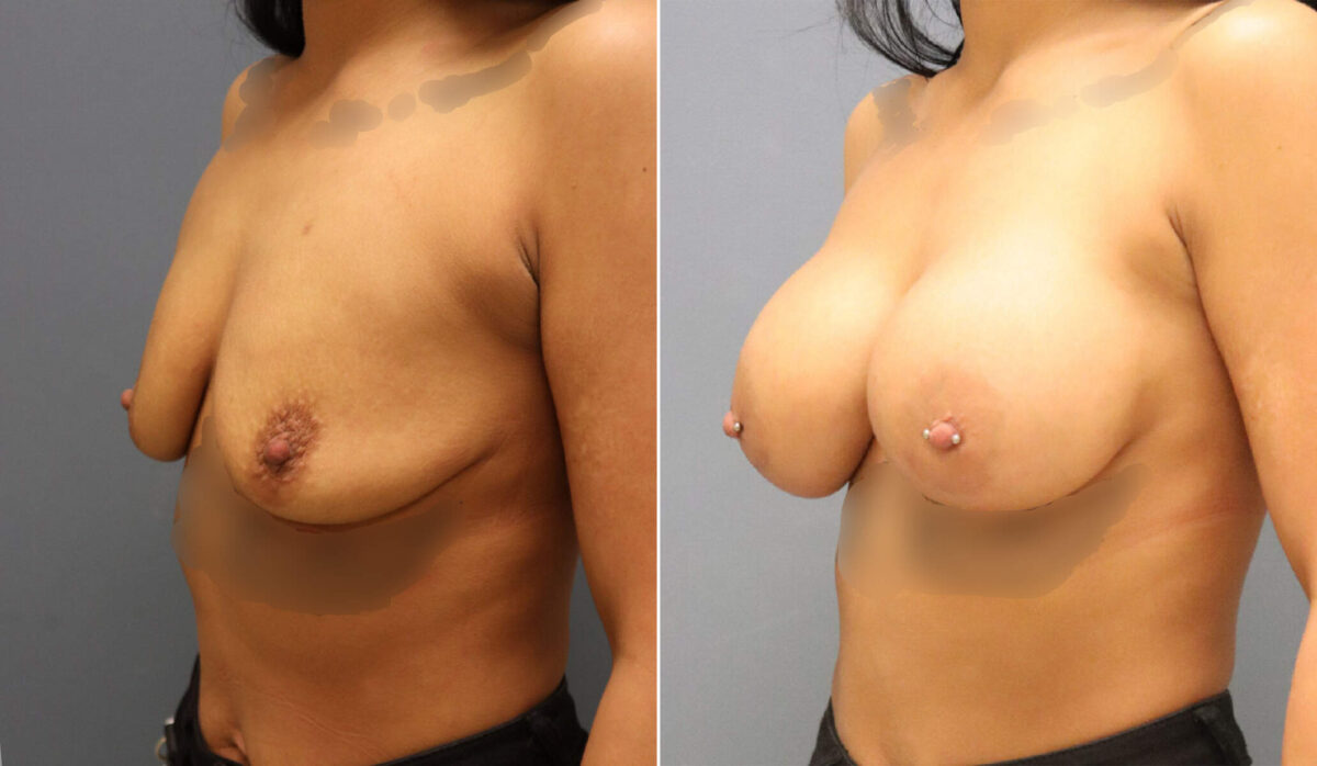Breast Augmentation Before and After Photos in Lexington, KY, Patient 12468