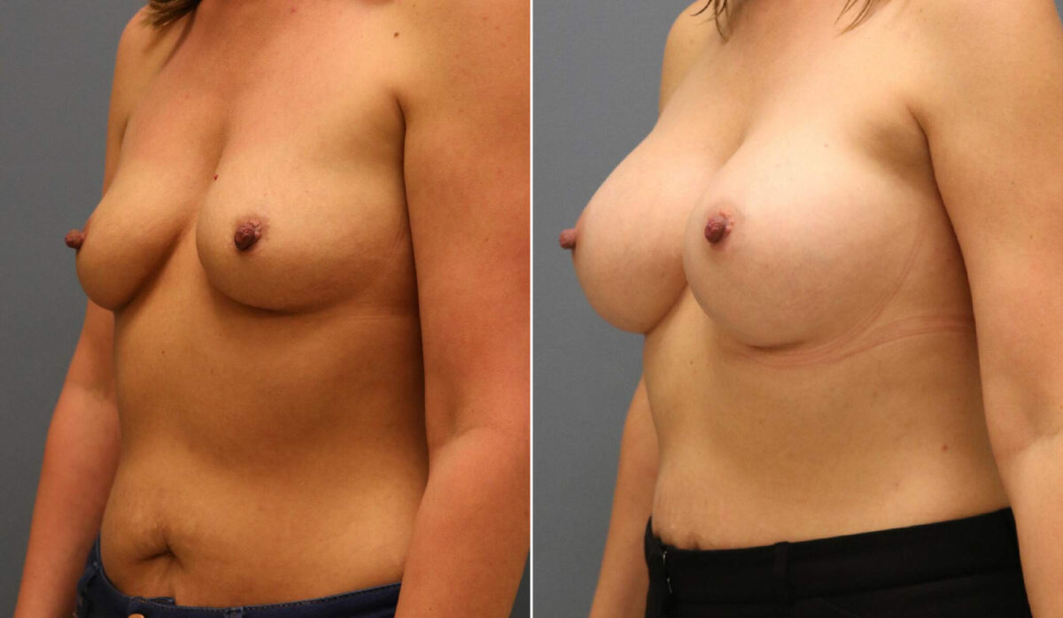 Breast Augmentation Before and After Photos in Lexington, KY, Patient 12488