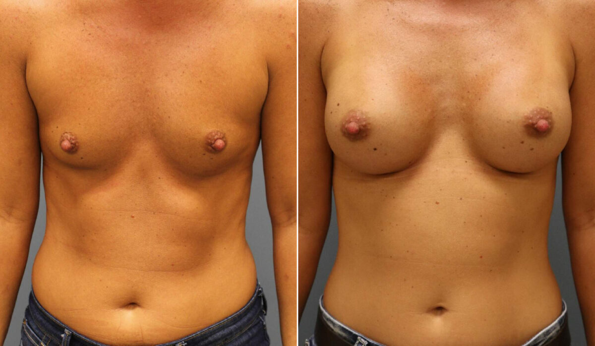 Breast Augmentation Before and After Photos in Lexington, KY, Patient 12498