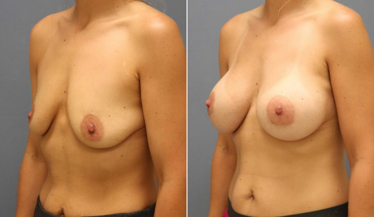 Breast Augmentation Before and After Photos in Lexington, KY, Patient 12519