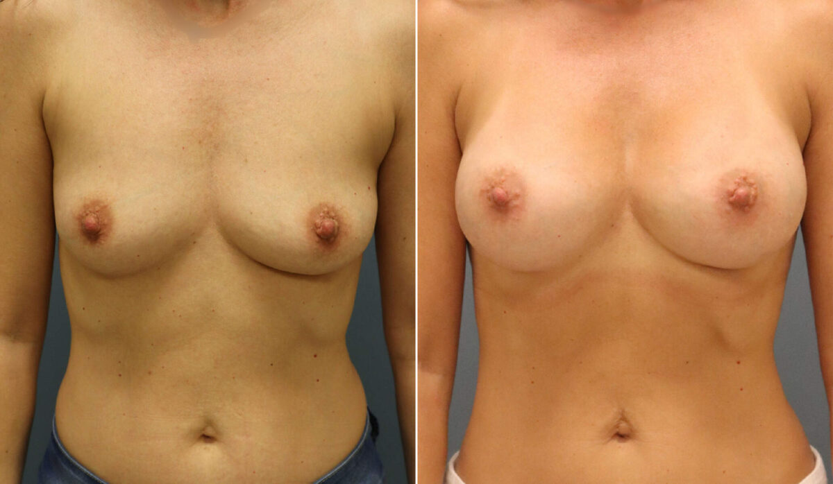 Breast Augmentation Before and After Photos in Lexington, KY, Patient 12539