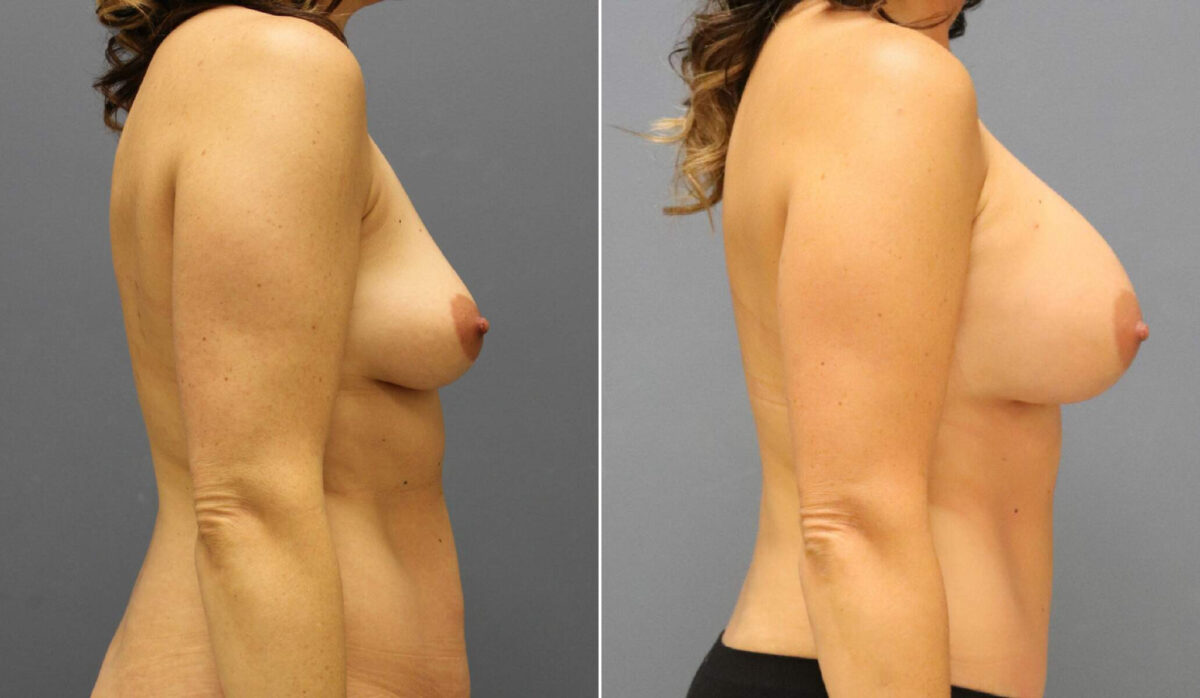 Breast Augmentation Before and After Photos in Lexington, KY, Patient 12614