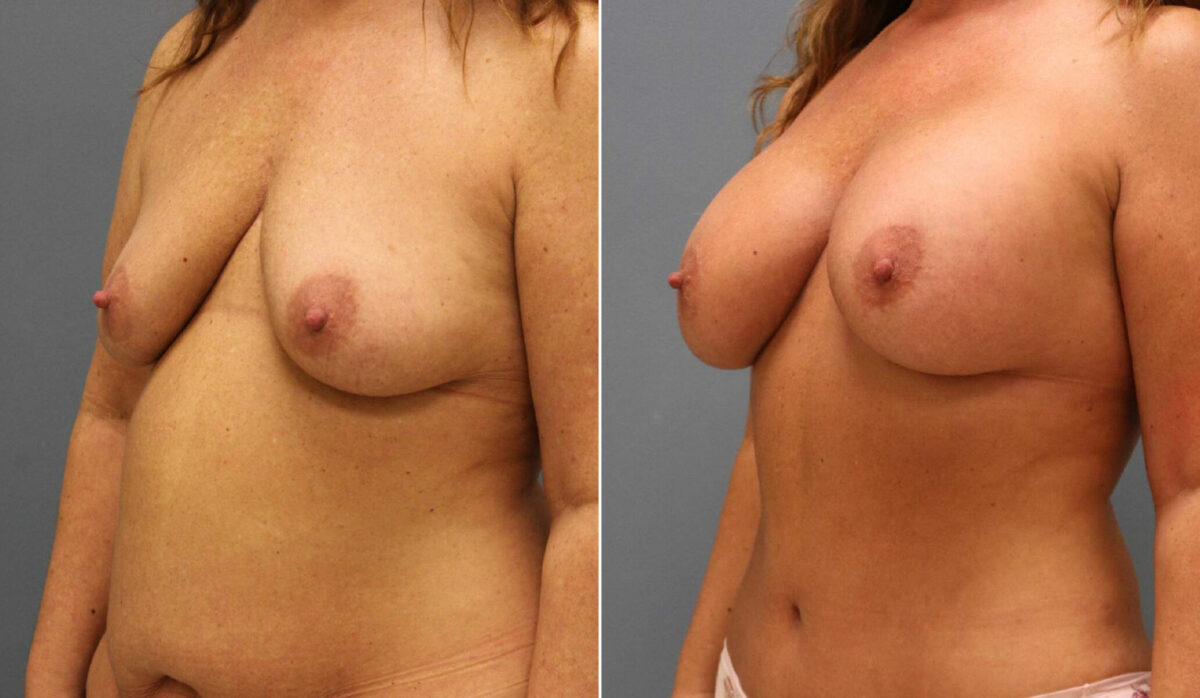 Breast Augmentation Before and After Photos in Lexington, KY, Patient 12634