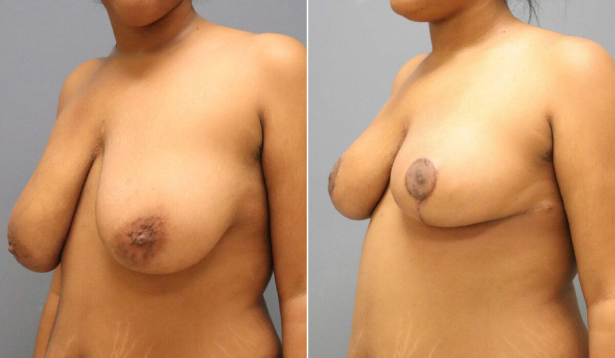 Breast Reduction Before and After Photos in Lexington, KY, Patient 12664