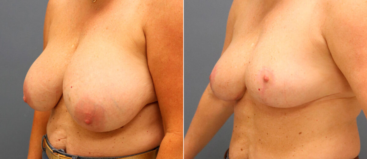 Breast Reduction Before and After Photos in Lexington, KY, Patient 13126