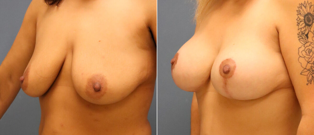 Breast Lift with Implants Before and After Photos in Lexington, KY, Patient 13164