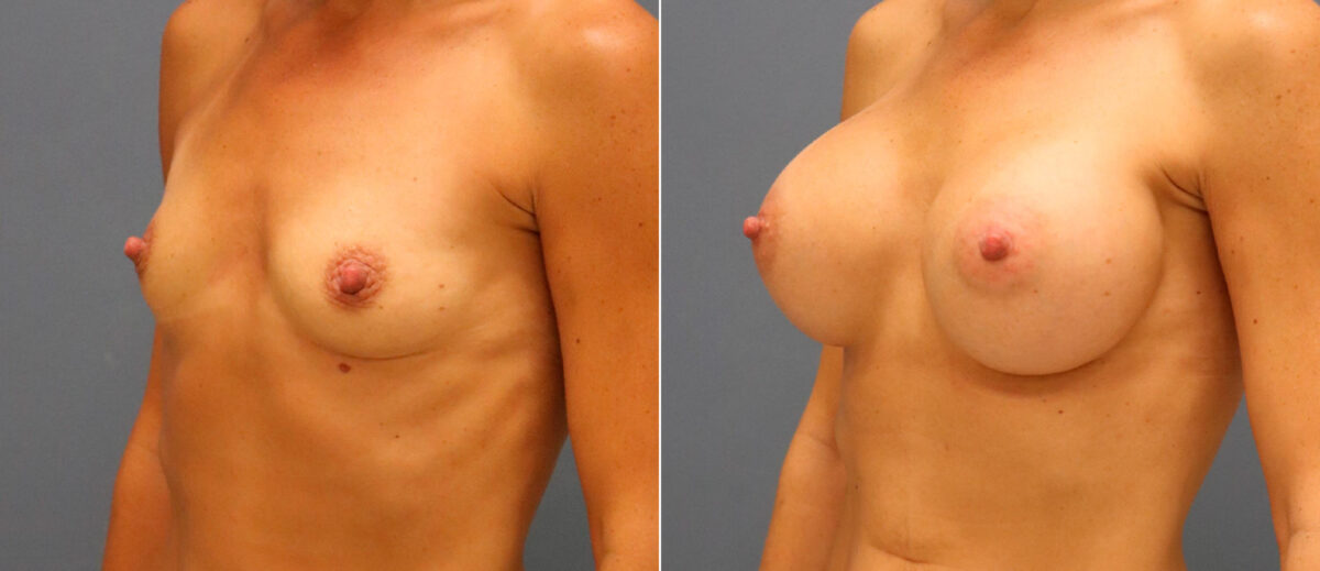 Breast Augmentation Before and After Photos in Lexington, KY, Patient 13171