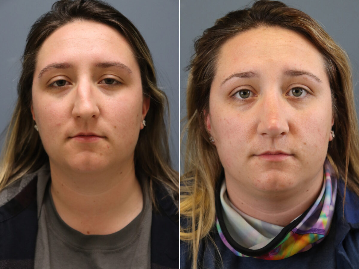 Nose Reshaping (Rhinoplasty) Before and After Photos in Lexington, KY, Patient 20334