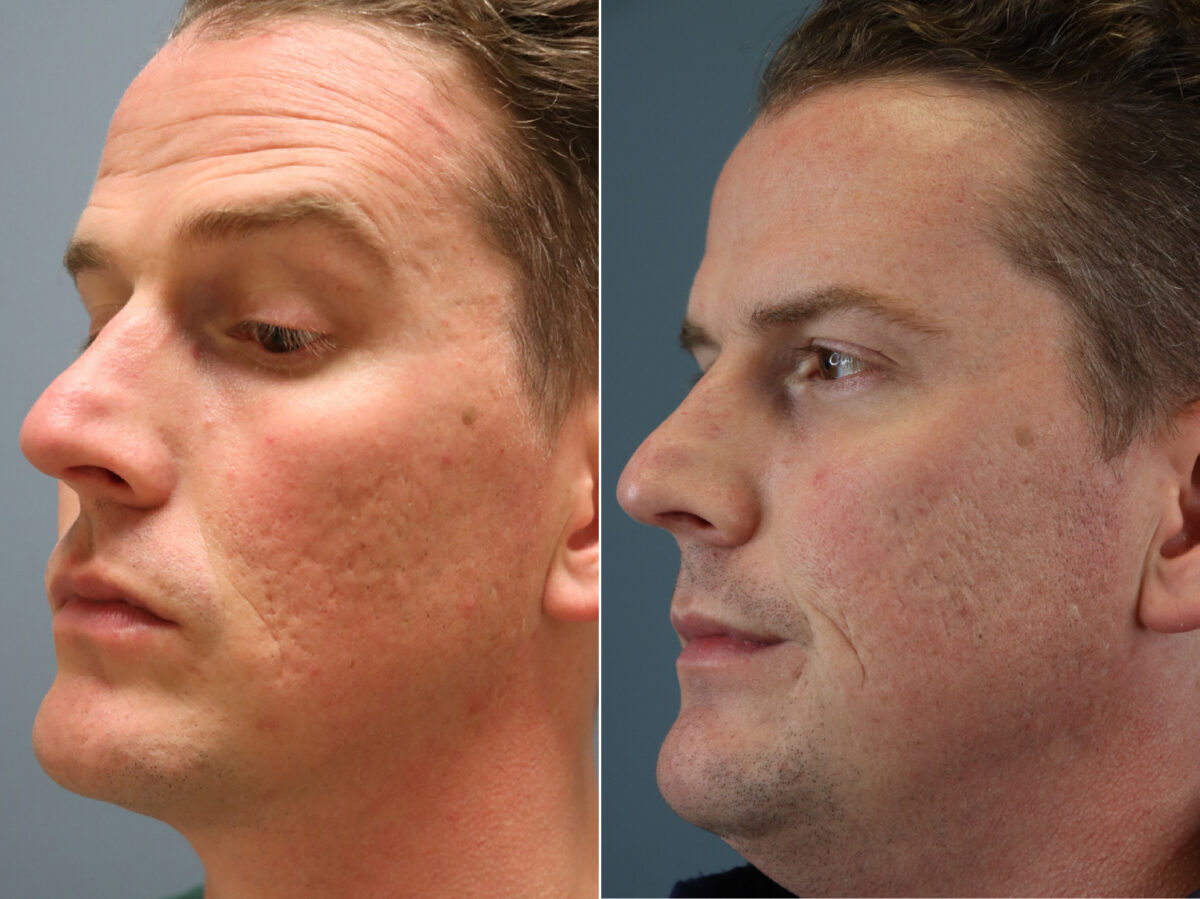Micro-Needling RF Before and After Photos in Lexington, KY, Patient 20360